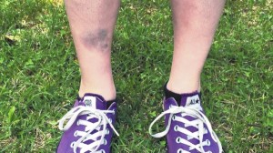 This July 8, 2016, photo provided by Justin Harrison shows the bruised shin of Lindsay Plunkett, a 23-year-old waitress in Asheville,  after she tripped over a cinder block that had been used as a doorstop while playing Pokemon Go.