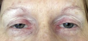 Submitted photo Judy Barnhardt said she had to dye her eyebrows every four weeks to get them the color she wanted. She decided to undergo microblading to darken the color of her eyebrows and create a fuller look.