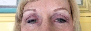 Submitted photo After getting her eyebrows microbladed, Judy Barnhardt now has fuller, darker eyebrows.
